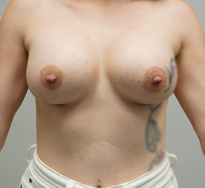 Breast Augmentation Gallery - Patient 67095985 - Image 2