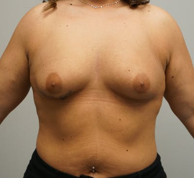 Breast Augmentation Gallery - Patient 67095986 - Image 1
