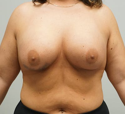 Breast Augmentation Gallery - Patient 67095986 - Image 2