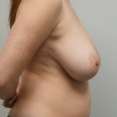 Breast Reduction Gallery - Patient 67096081 - Image 1