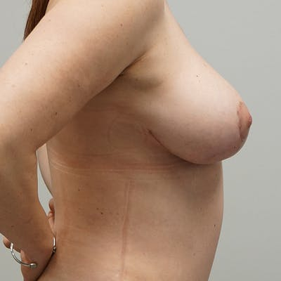 Breast Reduction Gallery - Patient 67096081 - Image 2