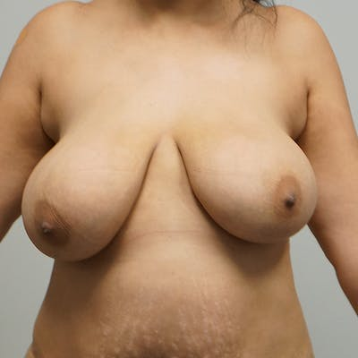 Breast Reduction Gallery - Patient 67096082 - Image 1