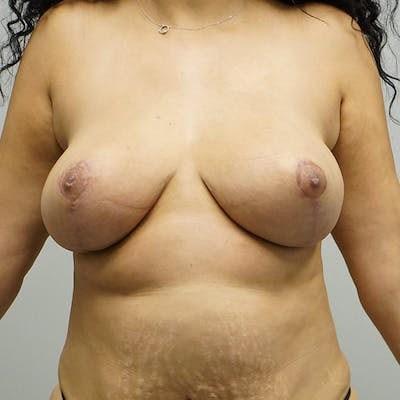 Breast Reduction Gallery - Patient 67096082 - Image 2
