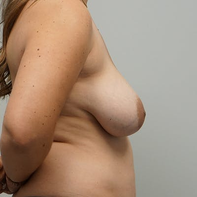 Breast Revision Surgery Gallery - Patient 67096147 - Image 1
