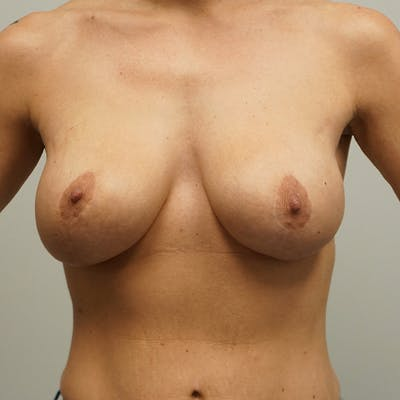 Breast Revision Surgery Gallery - Patient 67096148 - Image 1
