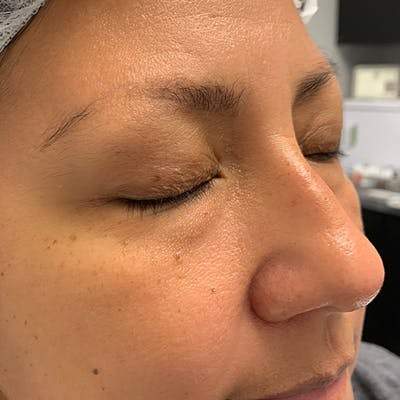 3D Microblading/ Henna Brows Gallery - Patient 67096460 - Image 1