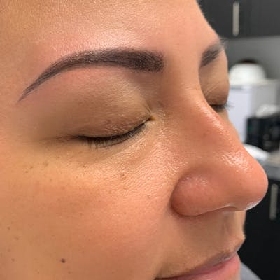 3D Microblading/ Henna Brows Gallery - Patient 67096460 - Image 2