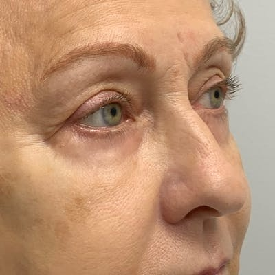 3D Microblading/ Henna Brows Gallery - Patient 67096461 - Image 1