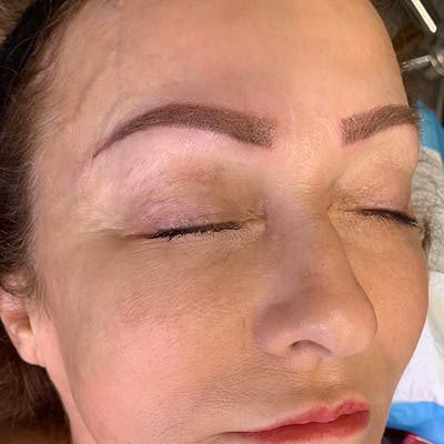 3D Microblading/ Henna Brows Gallery - Patient 67096461 - Image 2