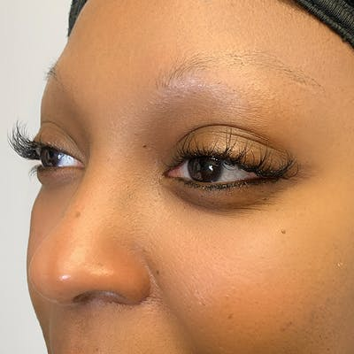 3D Microblading/ Henna Brows Gallery - Patient 67096464 - Image 1