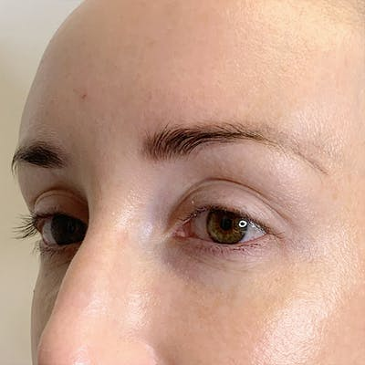 3D Microblading/ Henna Brows Gallery - Patient 67096465 - Image 1