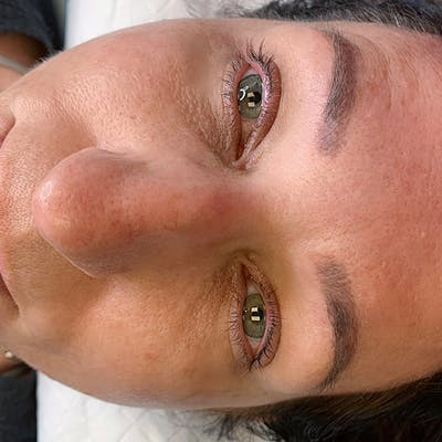 3D Microblading/ Henna Brows Gallery - Patient 67096466 - Image 1