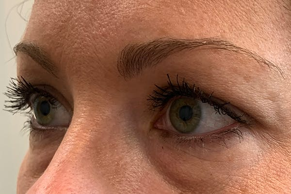 3D Microblading/ Henna Brows Gallery - Patient 11676273 - Image 3