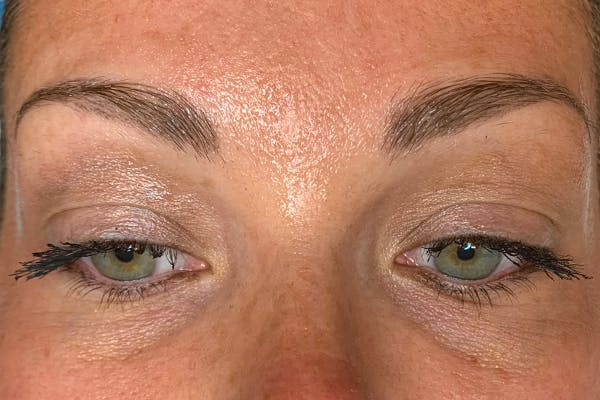 3D Microblading/ Henna Brows Gallery - Patient 11676273 - Image 5