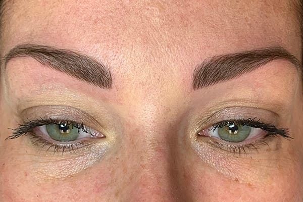 3D Microblading/ Henna Brows Gallery - Patient 11676273 - Image 6