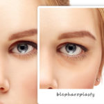 New York Laser Vision Blog | Blepharoplasty Can Restore Your Face's Youthful Appearance