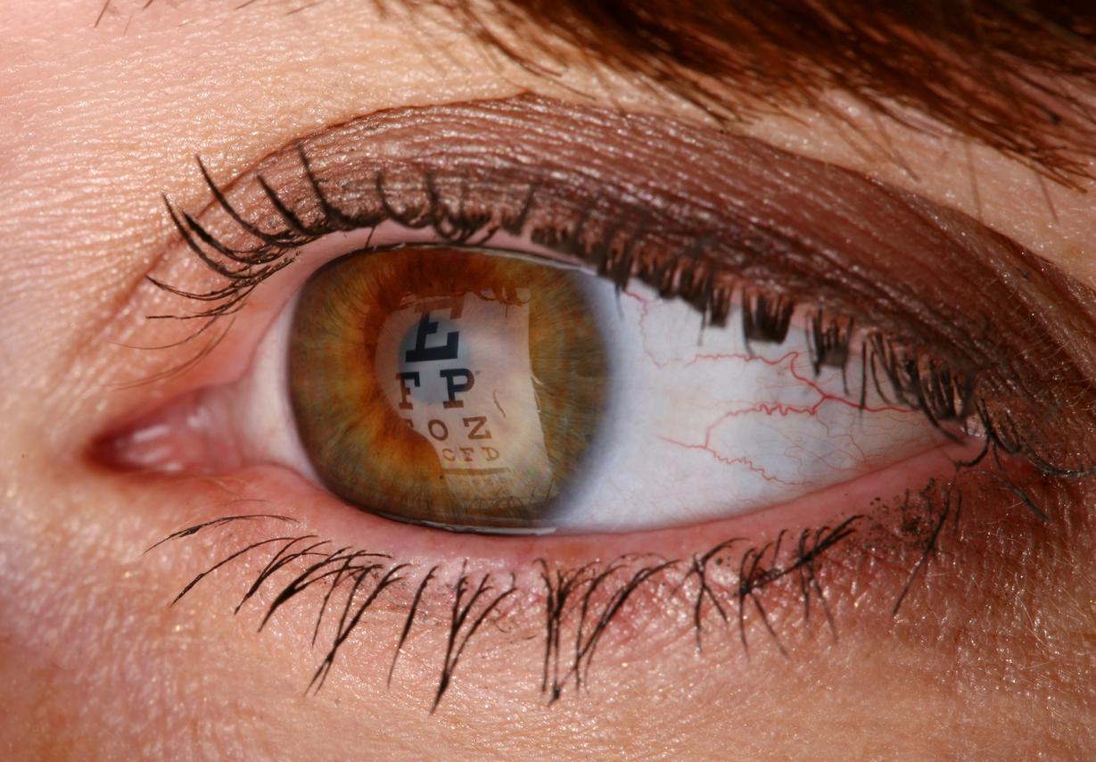 Julia Giyaur, MD   eye care   Brooklyn, NY
