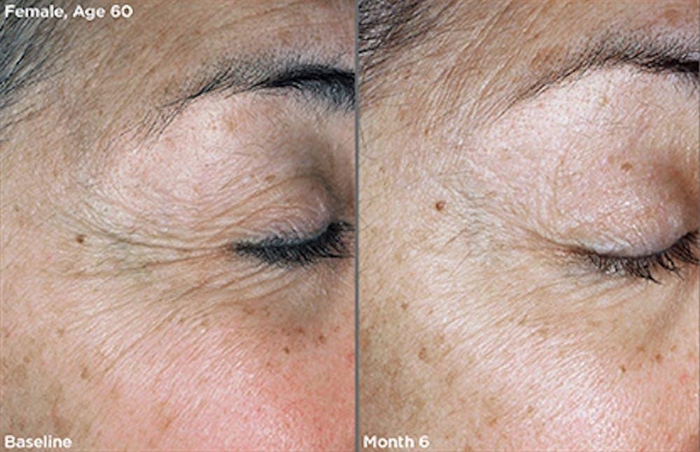 Skin Gallery - Patient 5750297 - Image 1