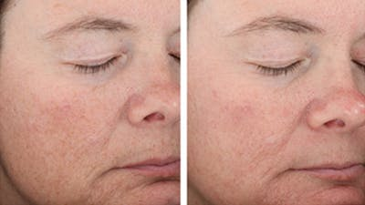 Skin Gallery - Patient 5750298 - Image 1