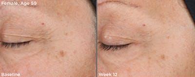 Skin Gallery - Patient 5750296 - Image 1