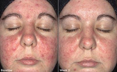 Skin Gallery - Patient 5750295 - Image 1