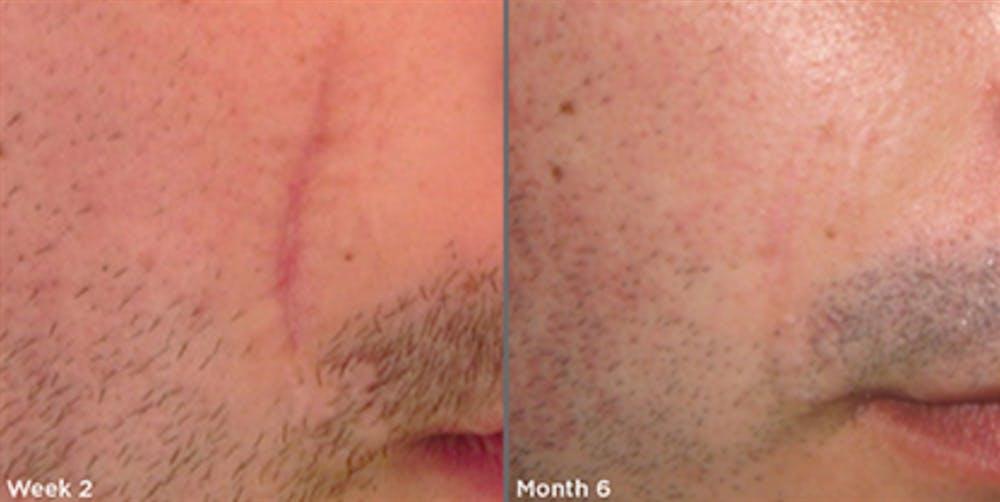 Skin Gallery - Patient 5750293 - Image 1