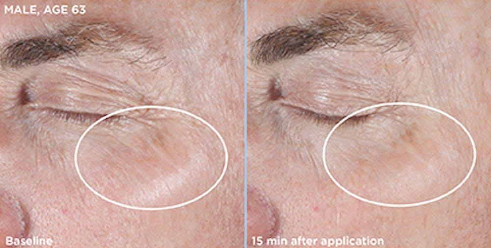 Skin Gallery - Patient 5750292 - Image 1