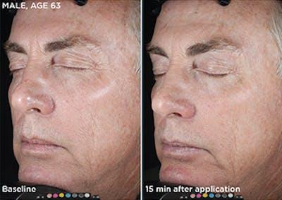 Skin Gallery - Patient 5750291 - Image 1