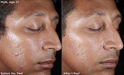 Skin Gallery - Patient 5750290 - Image 1