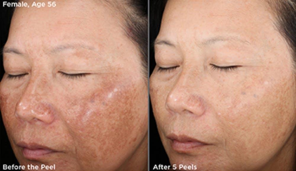 Skin Gallery - Patient 5750289 - Image 1