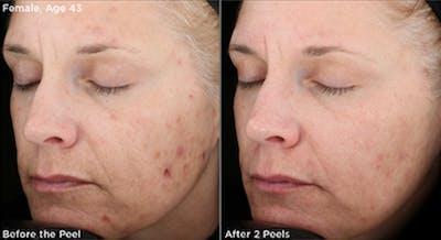 Skin Gallery - Patient 5750288 - Image 1
