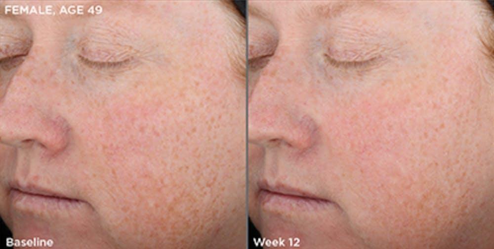 Skin Gallery - Patient 5750287 - Image 1