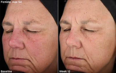 Skin Gallery - Patient 5750286 - Image 1