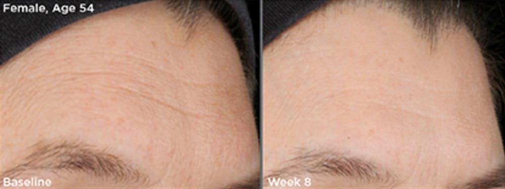 Skin Gallery - Patient 5750285 - Image 1