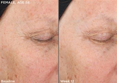 Skin Gallery - Patient 5750284 - Image 1