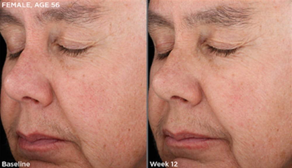 Skin Gallery - Patient 5750283 - Image 1