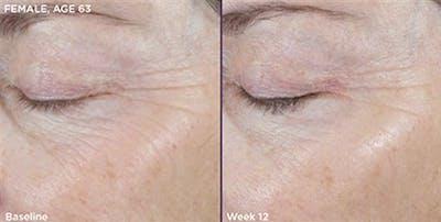 Skin Gallery - Patient 5750282 - Image 1
