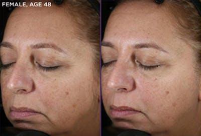 Skin Gallery - Patient 5750281 - Image 1