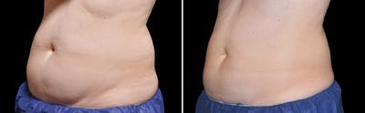 CoolSculpting Gallery - Patient 5750234 - Image 1