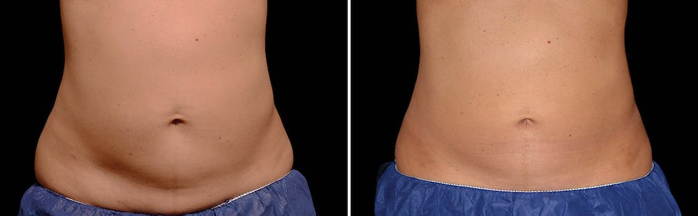 CoolSculpting Gallery - Patient 5750409 - Image 1