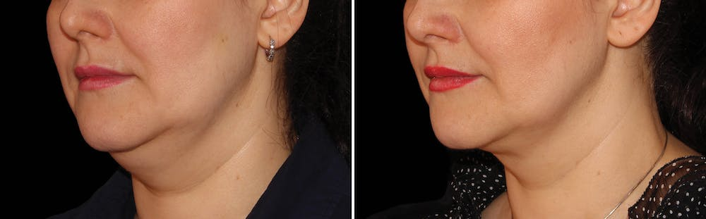 CoolSculpting Gallery - Patient 5750411 - Image 1