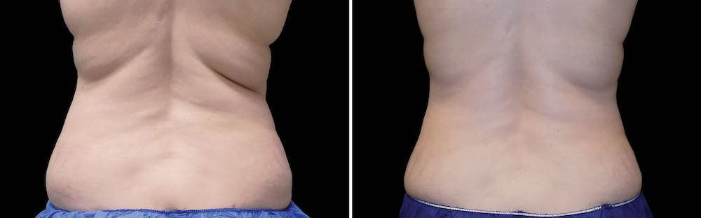 CoolSculpting Gallery - Patient 5750412 - Image 1