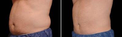 CoolSculpting Gallery - Patient 5750413 - Image 1