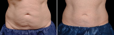 CoolSculpting Gallery - Patient 5750415 - Image 1