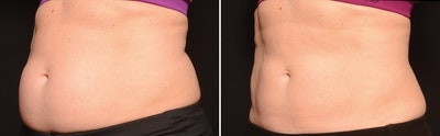 CoolSculpting Gallery - Patient 5750417 - Image 1