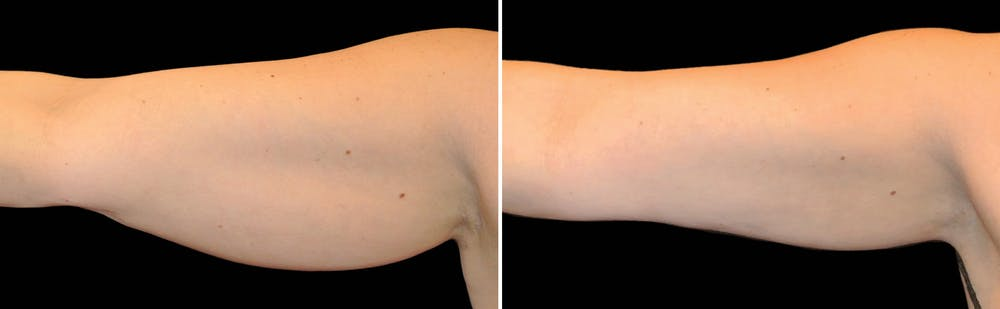 CoolSculpting Gallery - Patient 5750418 - Image 1