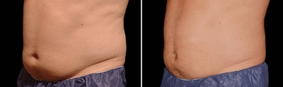 CoolSculpting Gallery - Patient 5750419 - Image 1