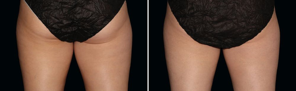 CoolSculpting Gallery - Patient 5750425 - Image 1