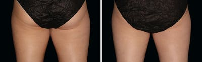 CoolSculpting Gallery - Patient 5750421 - Image 1