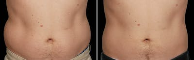 CoolSculpting Gallery - Patient 5750428 - Image 1